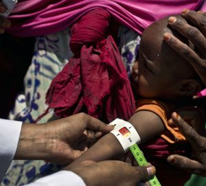 acute malnutrition in somalia